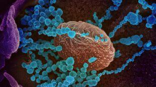 Testują szczepionkę na COVID-19. Szansa na 100 milionów dawek do końca roku